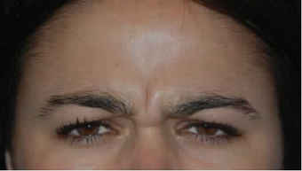 Botox to Treat Frown Lines and Vertical Lines Between Eyebrows before 53758
