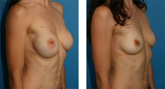 Breast Implant Removal with Internal Lift 562127