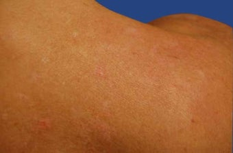Fraxel Acne Scarring Treatment