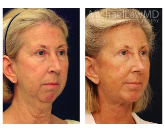 Facial Rejuvenation after 395135