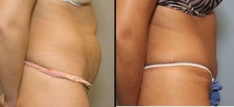 38 year old female with mini tummy tuck after 644119