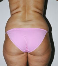 Liposuction of Waist and Flanks, Dr. Steve Laverson, San Diego, CA before 286007