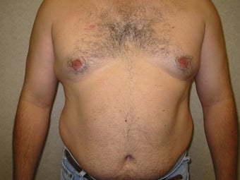 Liposuction before 340028