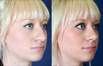 Revision Rhinoplasty with rib cartilage grafting