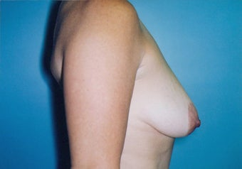 Vertical Mastopexy (Breast Lift) w/ Saline Implants before 247613