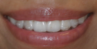 Invisalign before and afters after 151761