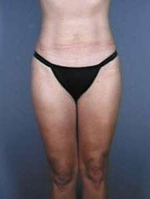 Liposuction after 470918