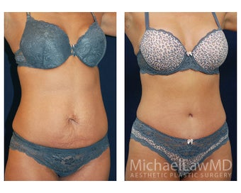 Abdominoplasty - Tummy Tuck after 396068