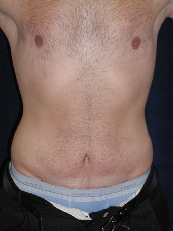 Male Tummy Tuck, Flank Liposuction, Male Breast Reduction after 578191
