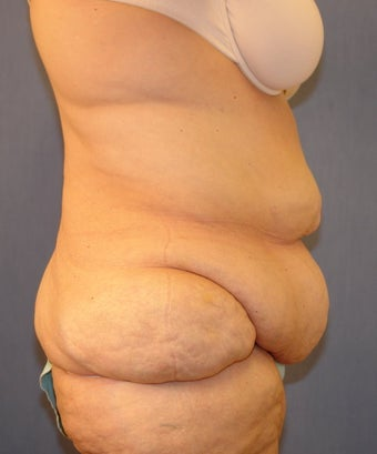 Abdominoplasty before 118906