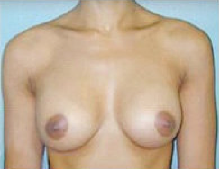 Breast Implants after 475165