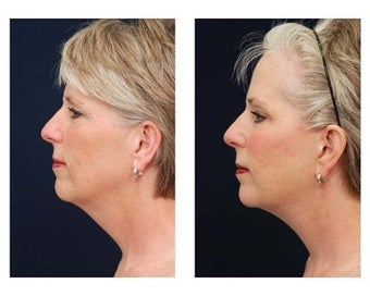 Lower Face and Neck Lift before 355124
