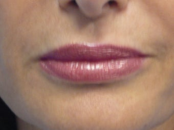 Juvederm Lips after 215707