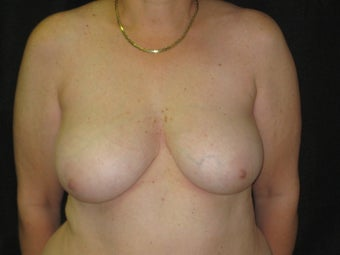 liposuction reduction of breasts after 223489