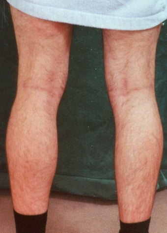 Men's Calf Augmentation  before 519062