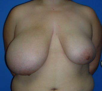 Breast Reduction/Lift with implant before 248363