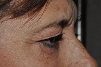 Bilateral upper eyelid blepharoplasty before 493457
