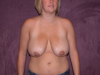 Breast Reduction before 321372