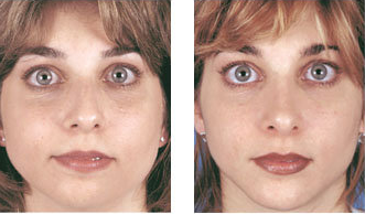 Rhinoplasty with chin implant front view before 6770