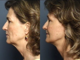 Eyelid Surgery & Facelift after 337408