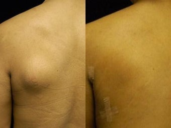 Lipoma Removal with Smartlipo Triplex before 600029