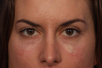 Restylane to Tear Troughs (under eyes) after 308348