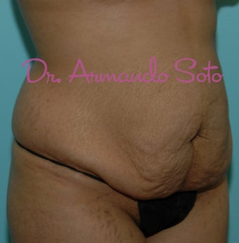Abdominoplasty (Tummy Tuck) before 207532