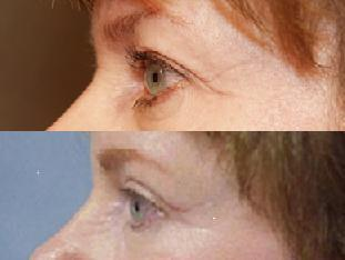 Eyelid Surgery before 140084