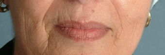 Radiesse/Juvederm before 100316