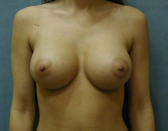 Breast augmentation after 409973