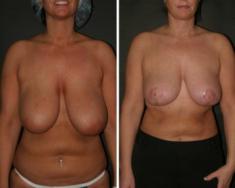 Breast Reduction before 99867