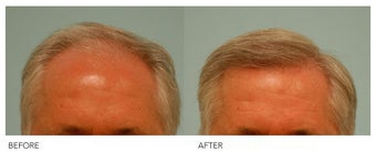Hair Transplant before 140427