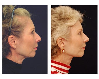 Lower Face and Neck Lift after 355123