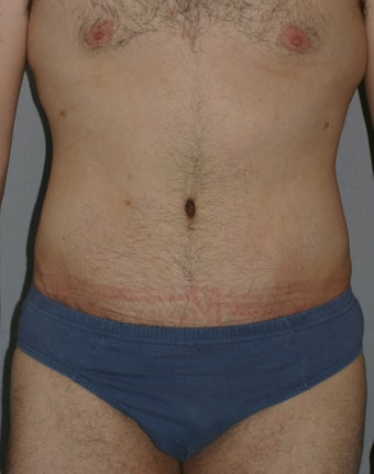 Male Abdominoplasty after 586638