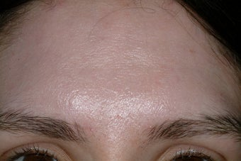 Acne scars after 92029