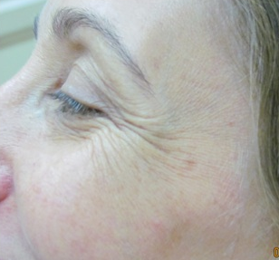 Botox for crow's feet before 383411