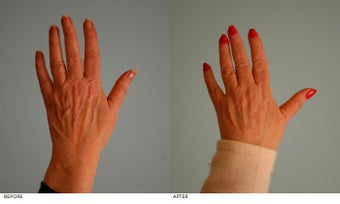 Hand Rejuvenation (with Fat Transfer) after 153641