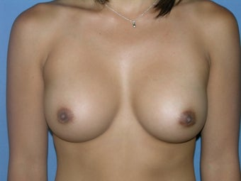 Breast Augmentation after 279241