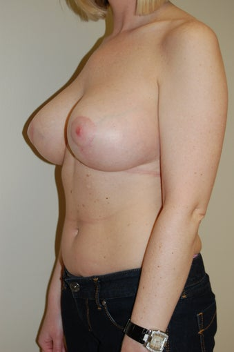 Breast Lift after 510824