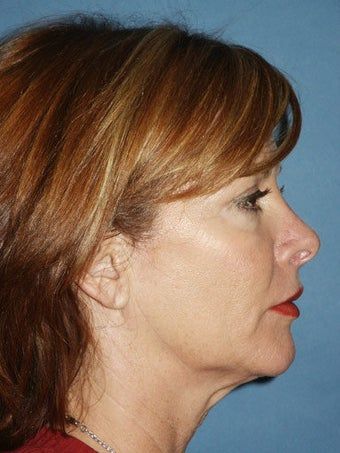 Facelift, Endoscopic Browlift, Upper and Lower Blepharoplasty, Perioral Dermabrasion before 248924
