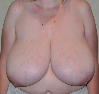 Breast Reduction before 521074