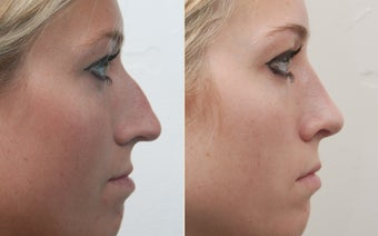 Rhinoplasty before 259582