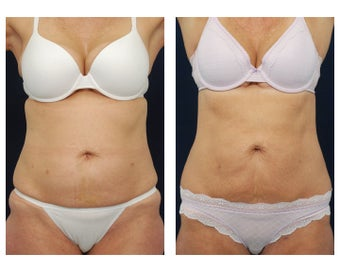 Liposuction before 495485
