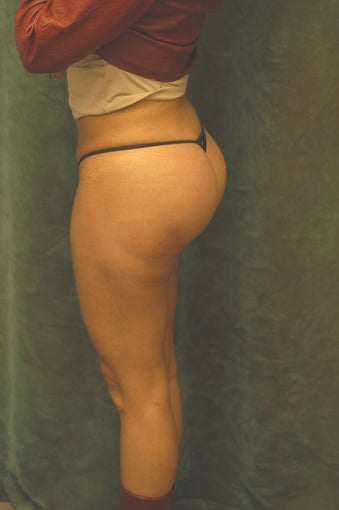 Women's Buttocks Augmentation   after 518123