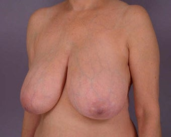 Breast Reduction before 285307