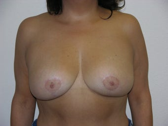 Breast Reduction after 314184
