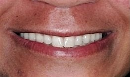 Dental Implants after 262214