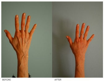 Hand Rejuvenation (with Fat Transfer) before 136427