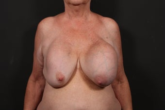 Breast reconstruction before 614909