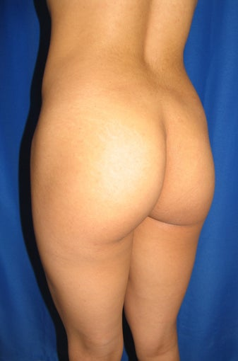 Buttocks Augmentation before 420084